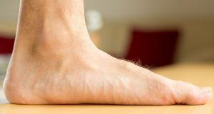 Telapak kaki datar atau flat foot adalah