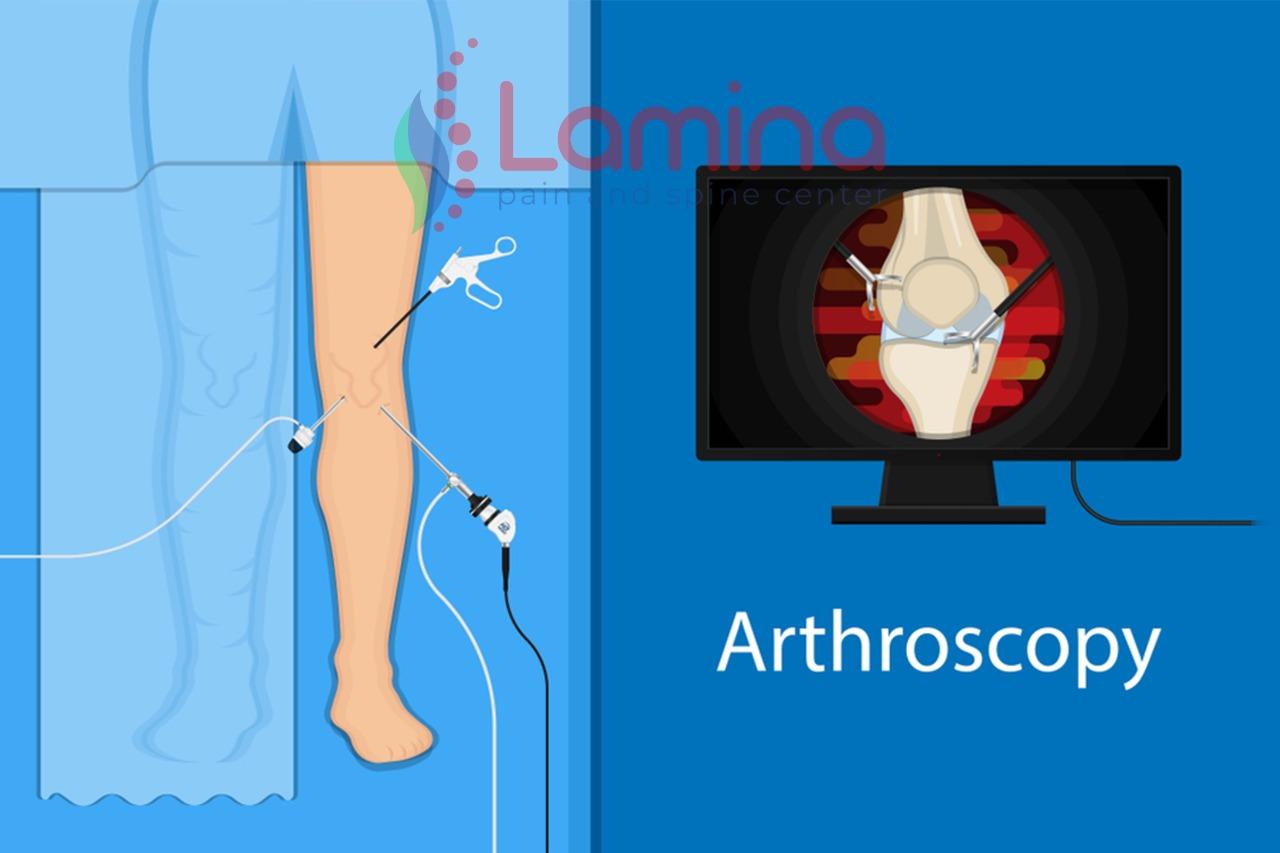 artroskopi lutut adalah