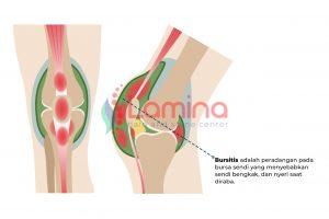 Nyeri lutut akibat bursitis