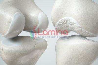 Pengobatan osteoartritis pengapuran lutut