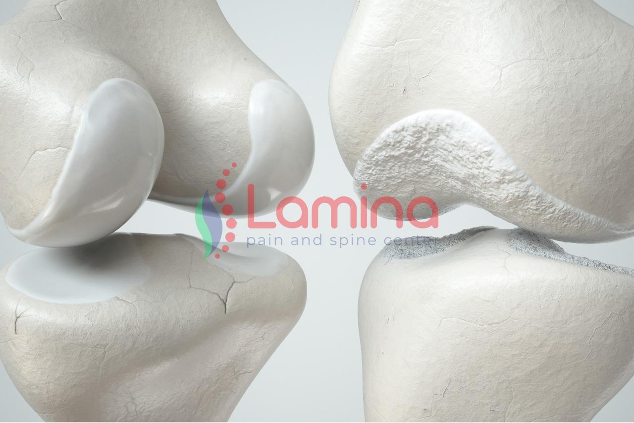 osteoartritis pengapuran lutut
