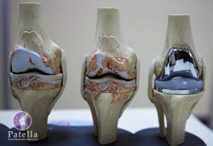 Robekan Pada Lutut