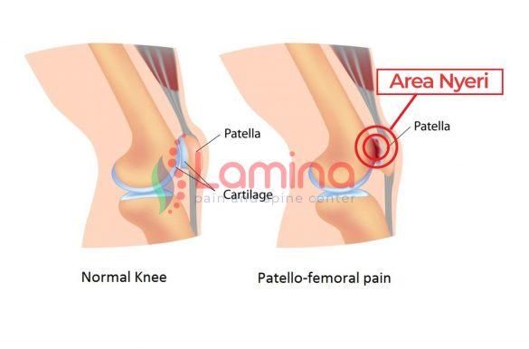 patellofemoral pain syndrome lutut nyeri