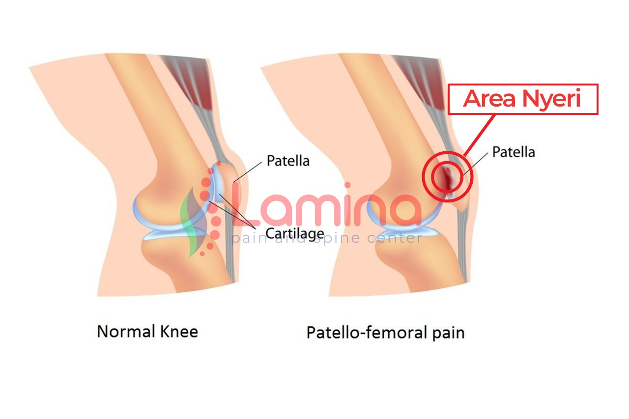 patellofemoral pain syndrome lutut nyeri