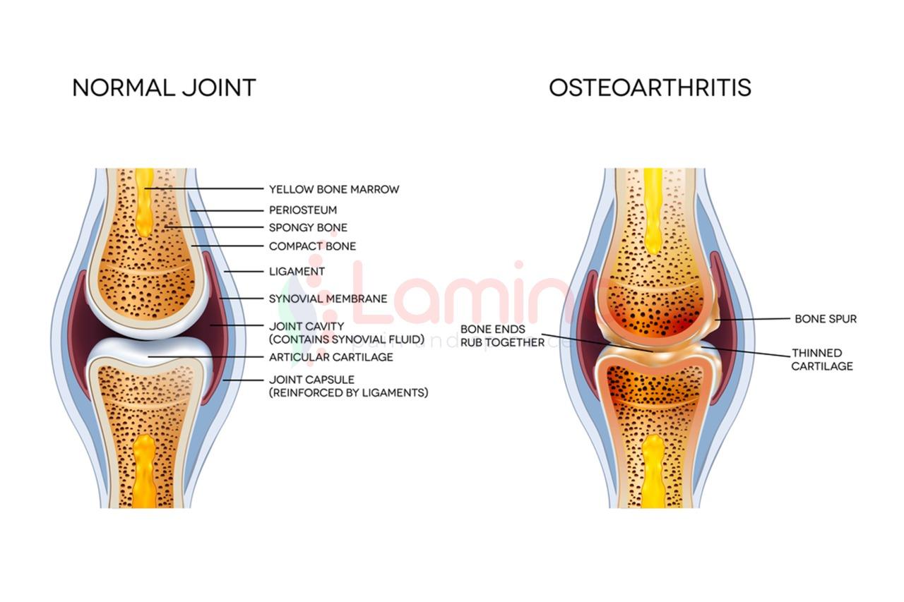 vitamin untuk tulang dan sendi