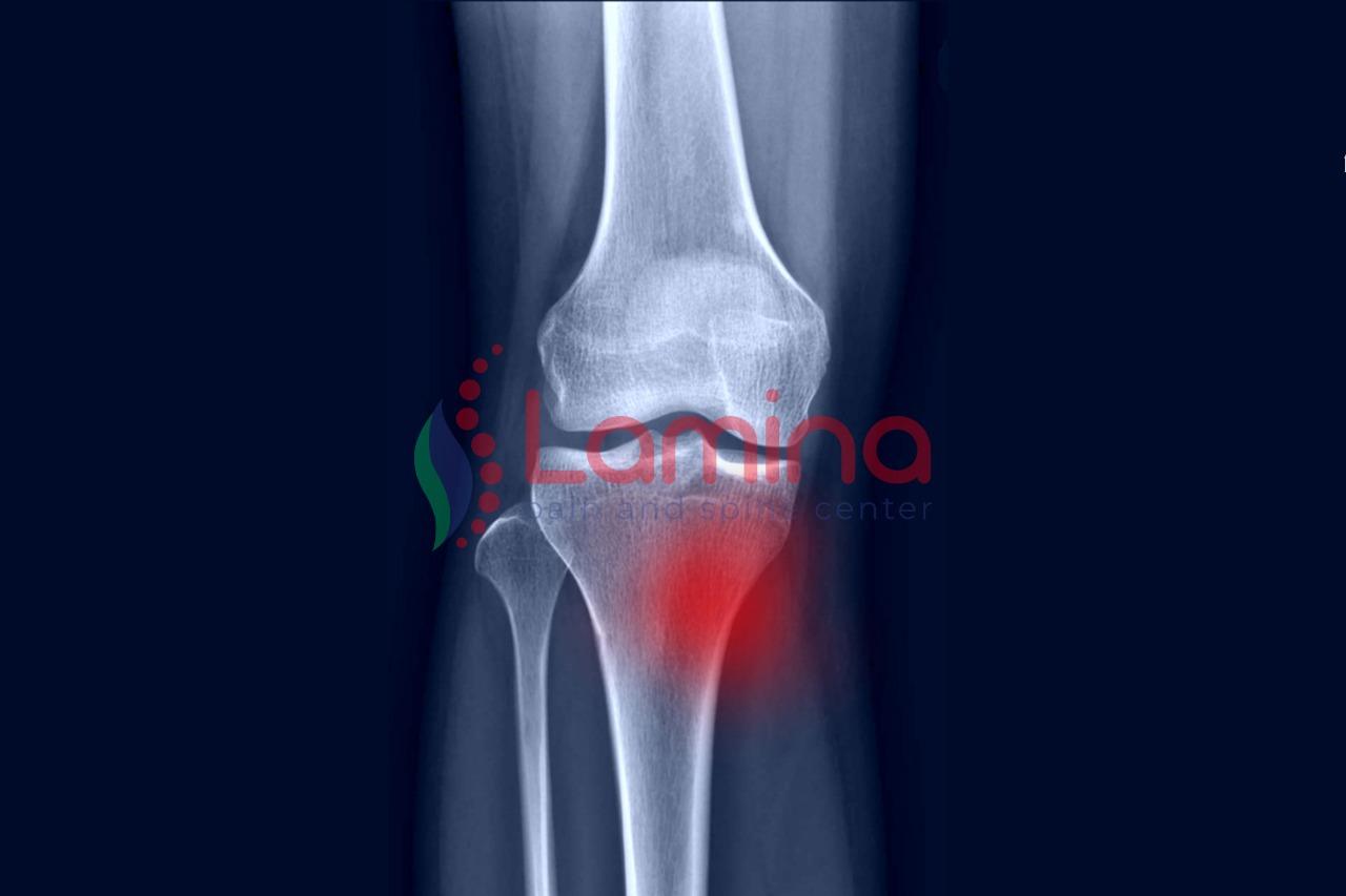pes anserinus bursitis penyebab lutut nyeri bengkak
