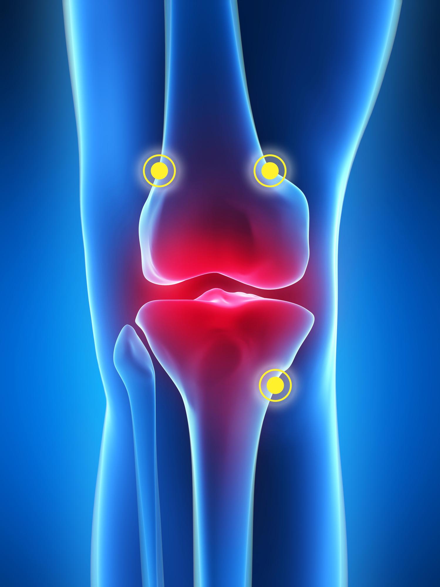 obat nyeri lutut yang ampuh, radiofrekuensi ablasi
