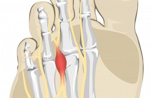 neuroma Morton menyebabkan nyeri jari kaki