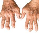 rheumatoid arthritis adalah